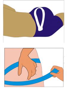 Imagen de una colocación del kinesiotaping para el músculo piramidal