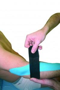 Imagen que hace referencia a una aplicación de kinesiotaping en epicondilitis