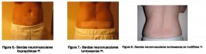 Imagenes que acompañan al texto tratamiento de la dismenorrea primaria con kinesiotaping