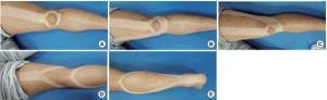 Aplicación kinesiotaping para la fatiga muscular lumbar