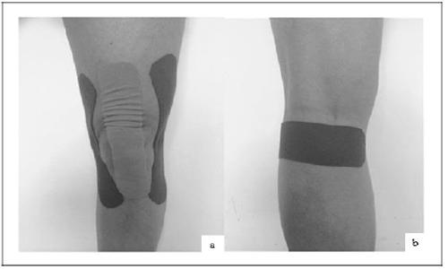 Imagen Kinesiotaping para la artrosis de rodilla