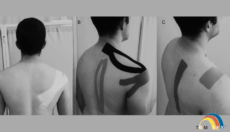 Efecto del kinesiotaping en la discinesis escapular