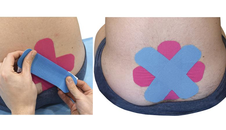 Imagen de una técnica de Vendaje Neuromuscular para la Incontinencia Urinaria