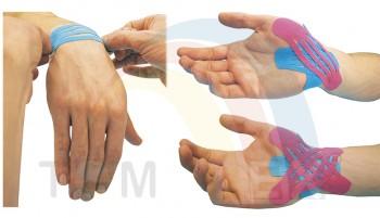 Aplicación de vendaje neuromuscular sobre para el tratamiento del túnel carpiano